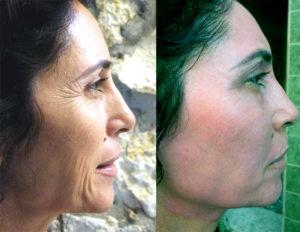 Besthetics A Műtét nélküli arc, nyak es szemhéj plasztika